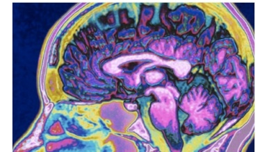 Brain_scan-950540-edited.jpeg
