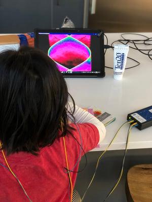 neurofeedback-training-for-kids-neuroptimal-session-sensors-